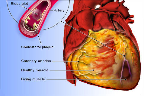 Image result for Ischemic cardiomyopathy